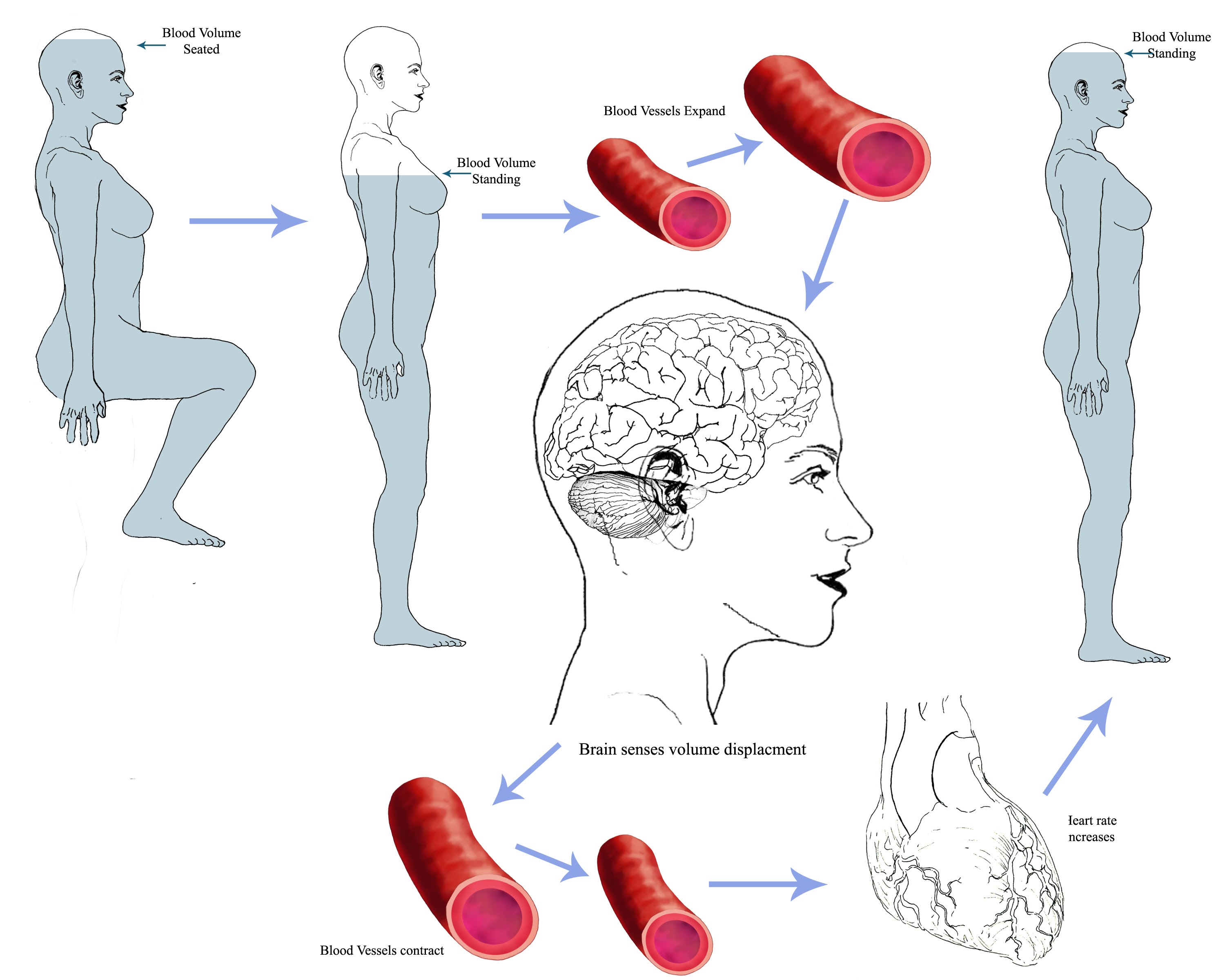 postural orthostatic tachycardia syndrome pots Postural orthostatic tachycardia syndrome (pots) is a group of symptoms associated with increased heart rate when standing learn more about pots.