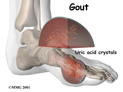 Primary Gout  Causes, symptoms, treatment Primary Gout