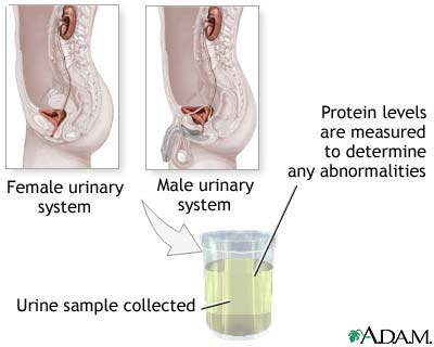24 hour urine test pregnancy instructions
