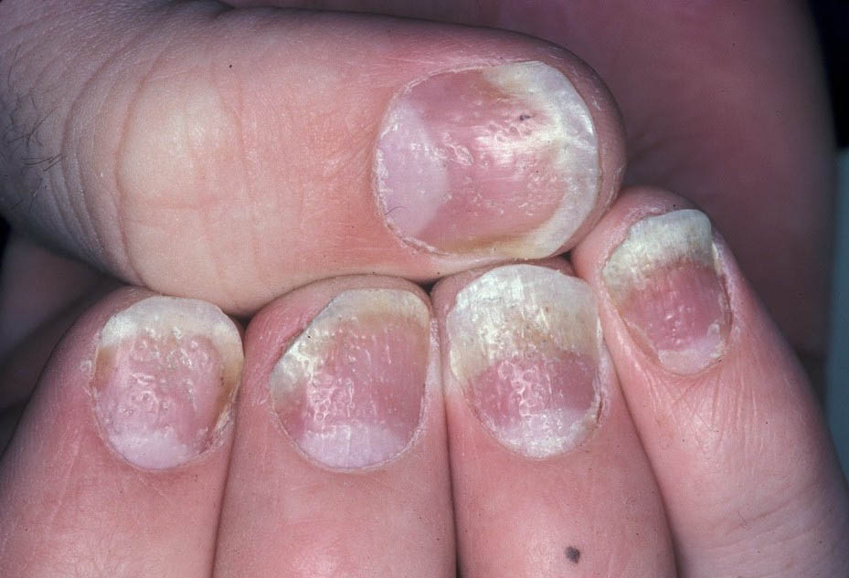 Psoriasis treatment in difficult locations: Scalp, nails and intertriginous areas 1