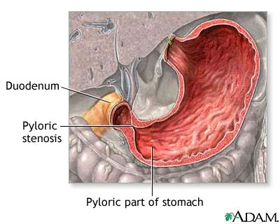 Pyloric stenosis. Causes, symptoms, treatment Pyloric stenosis