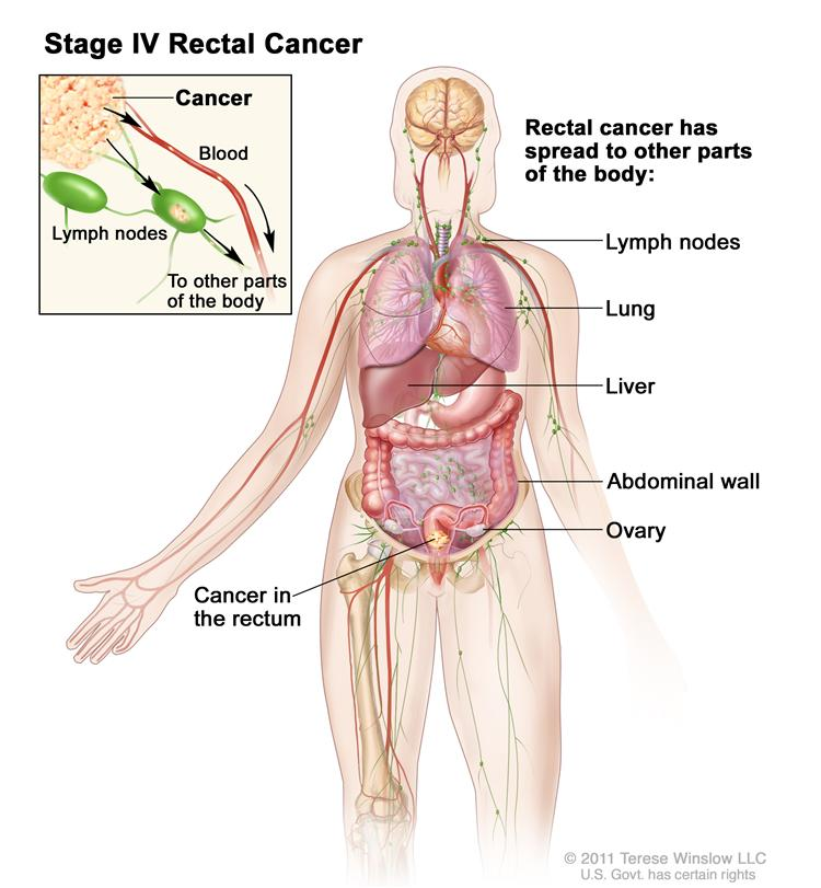 Rectal Cancer Causes Symptoms Treatment Rectal Cancer