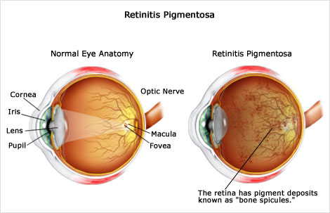 Retinitis treatment