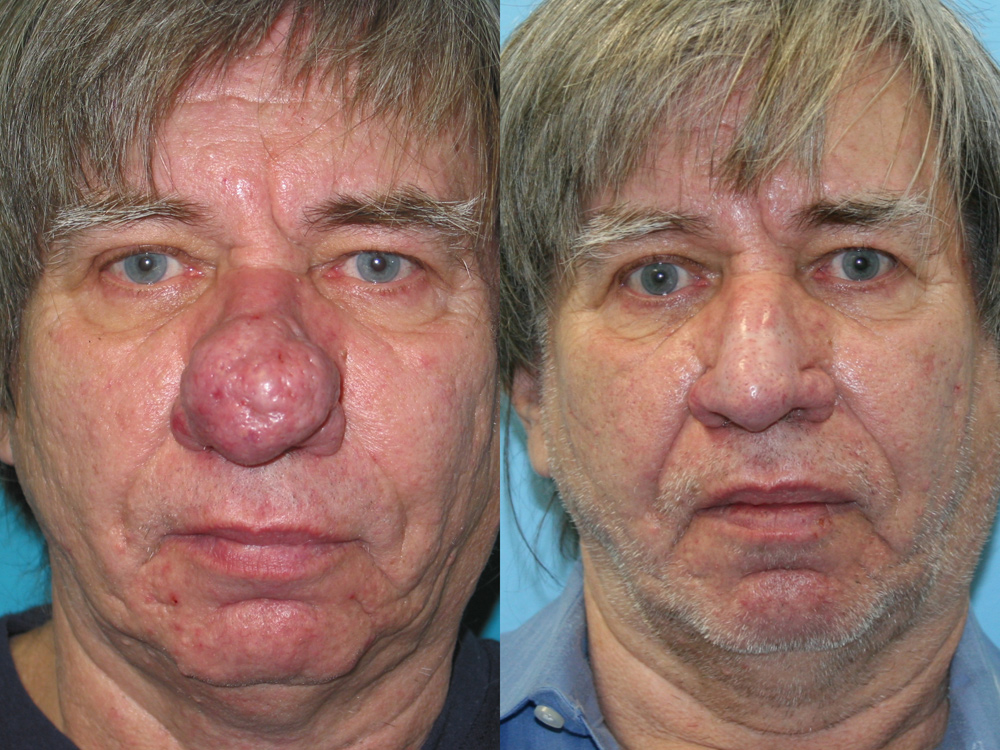 steroids acne supplements