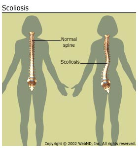 vertebral column and normally scoliosis essay Kyphosis causes and treatment kyphosis causes and treatment share pin it newsletters due to a malformation of the spinal column in the womb exercises to strengthen abdominal and back muscles can help correct kyphosis from poor posture and maintain a more normal alignment.