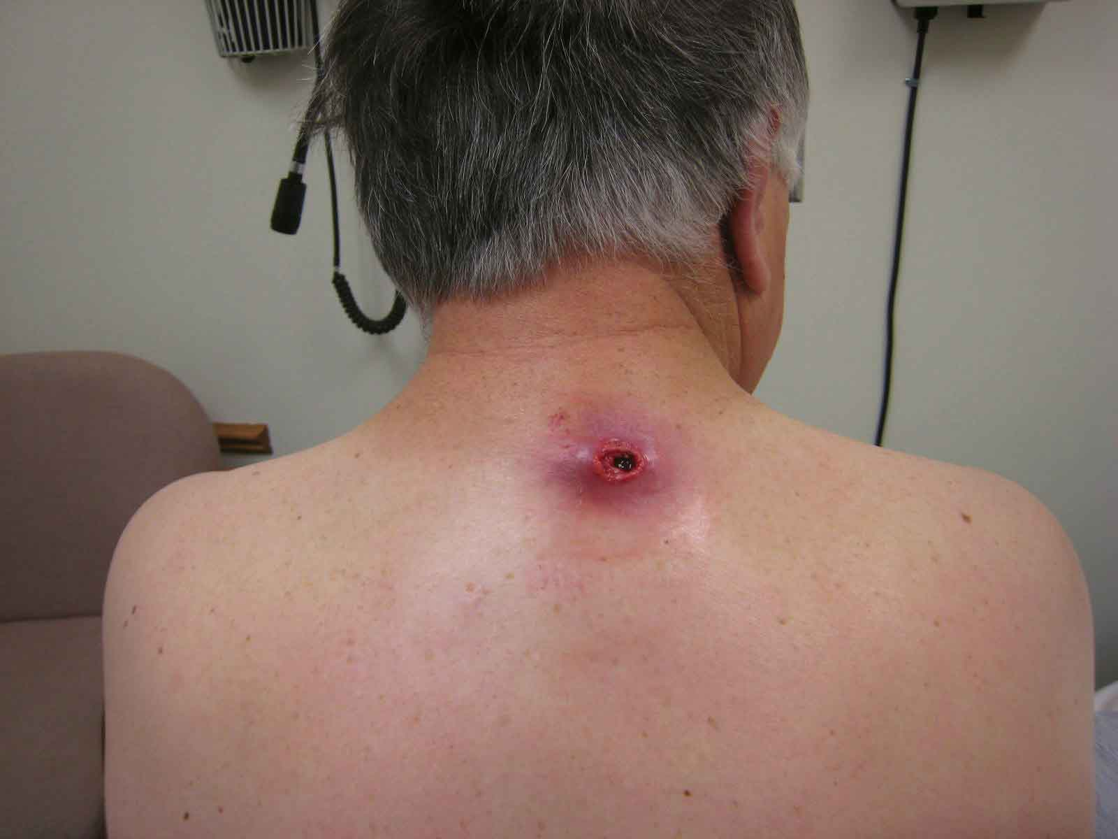 Epidermoid and pilar cysts (sebaceous cysts) - WebMD Boots