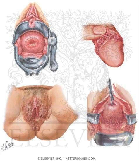 syptoms of sexual diseses