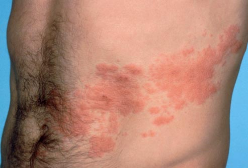treatment for shingles in adults