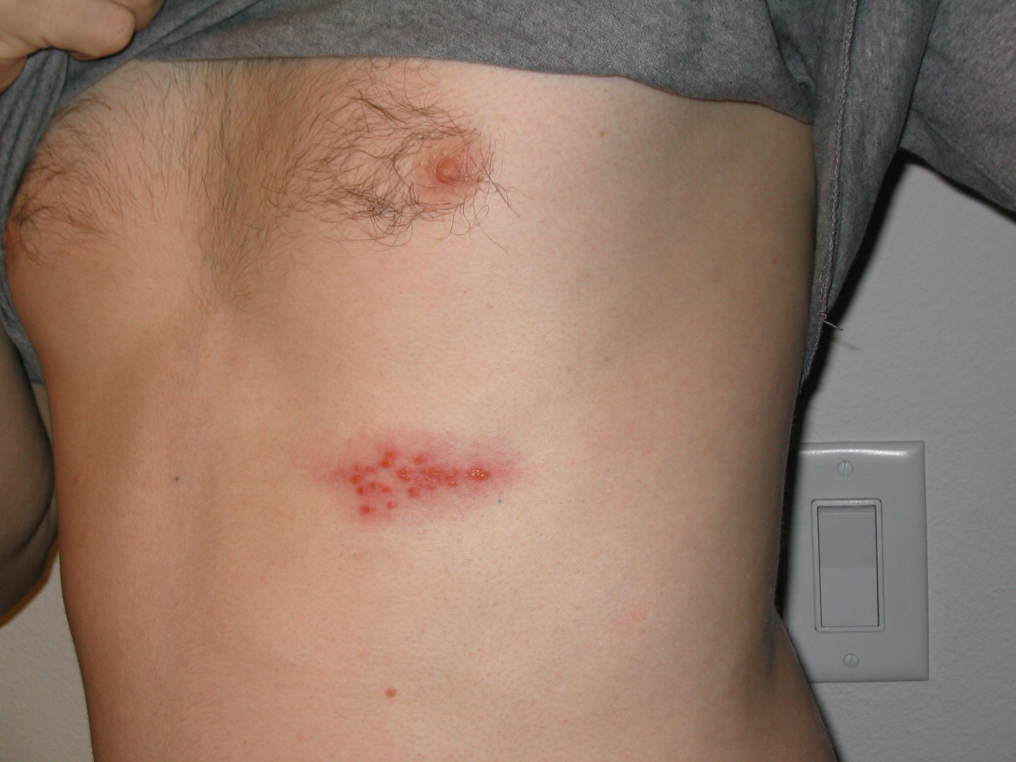 Shingles Herpes Zoster Causes Symptoms Treatment