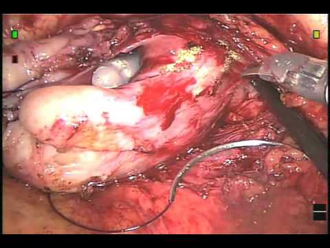 After a Radical Prostatectomy