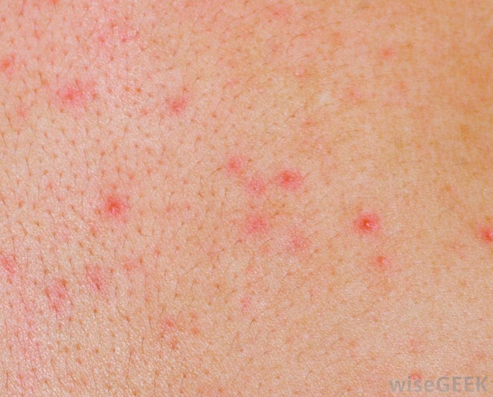 pictures of skin rashes #10