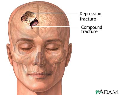 Skull fracture. Causes, symptoms, treatment Skull fracture