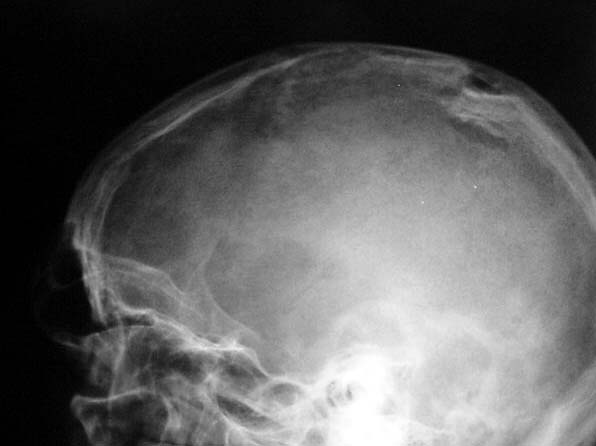 Linear Skull Fracture : Skull fracture causes symptoms treatment