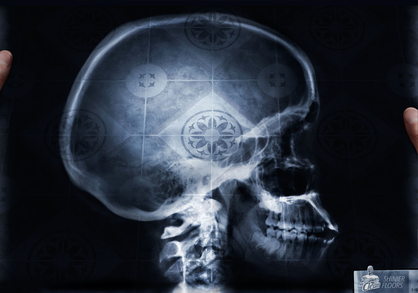 Displaying 17 gt  Images For - X Ray   Xray Broken Skull