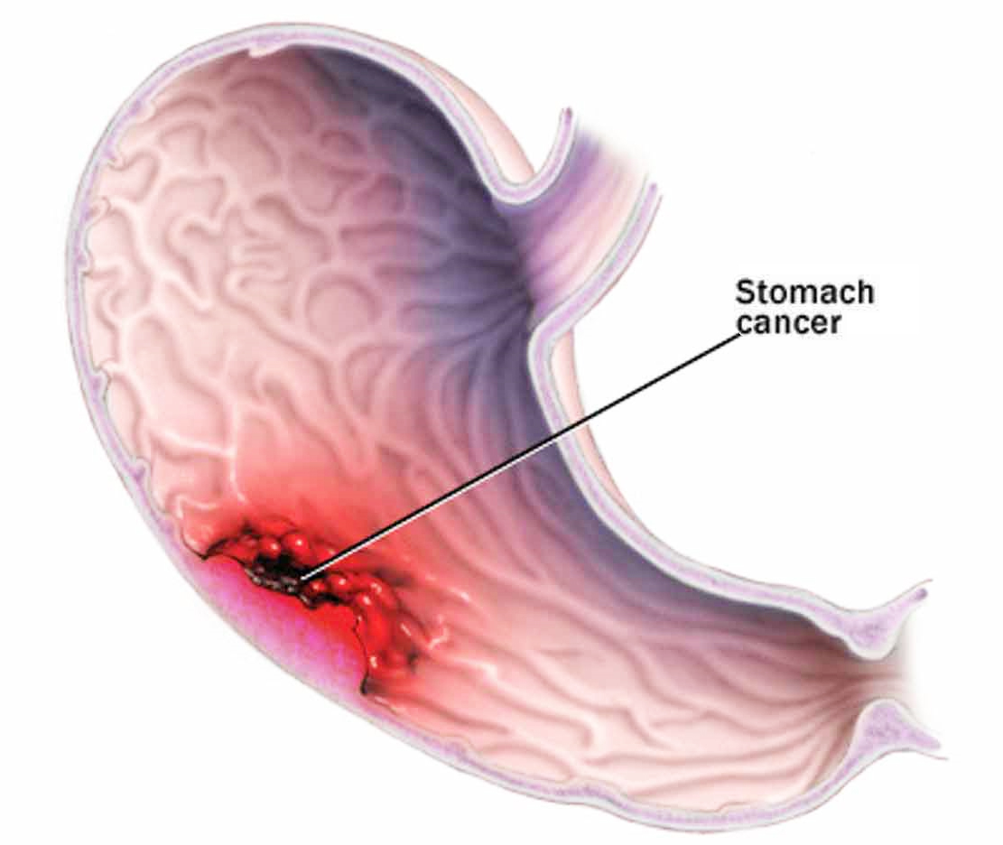 Stomach cancer causes symptoms treatment stomach cancer