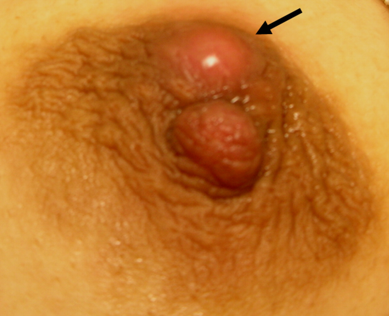 Breast abscess symptoms