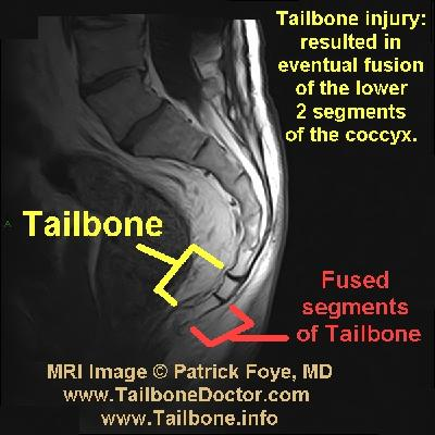 how to know if your tailbone is broken