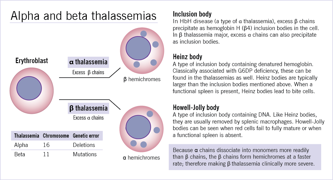 beta thalassemia major blood disease biology essay Beta-thalassema is an inherited autosomal-recessive blood disease affecting red   individuals with beta-thalassemia major require regular blood  /beta- thalassemia-an-evolutionary-perspective-biology-essayphpvref=1.