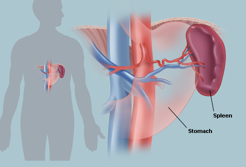 The Spleen Causes Symptoms Treatment The Spleen