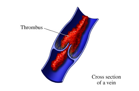 Thrombus causes symptoms treatment thrombus for Mural thrombi