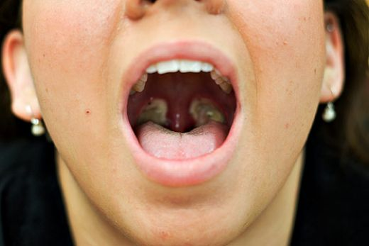 Sorry, tonsillectomy adult risk