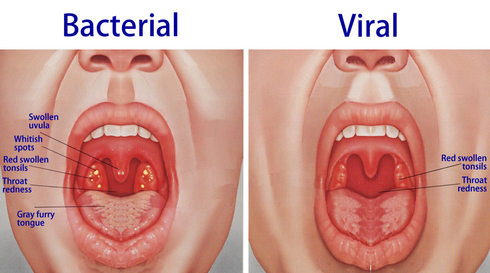 How do you treat nasal cancer hpv