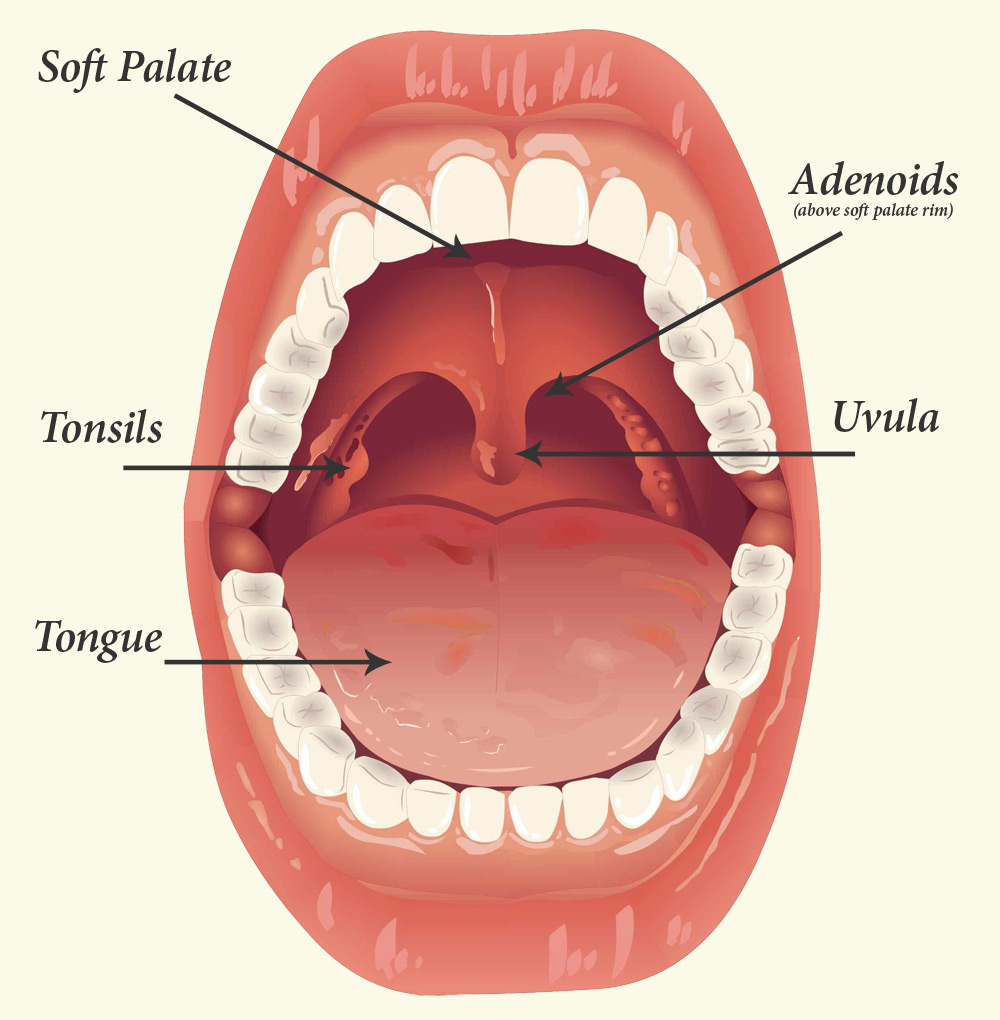 Tonsils and Adenoids. Causes, symptoms, treatment Tonsils and Adenoids