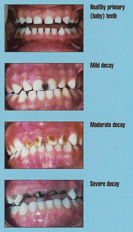 Tooth Decay  Causes, symptoms, treatment Tooth Decay