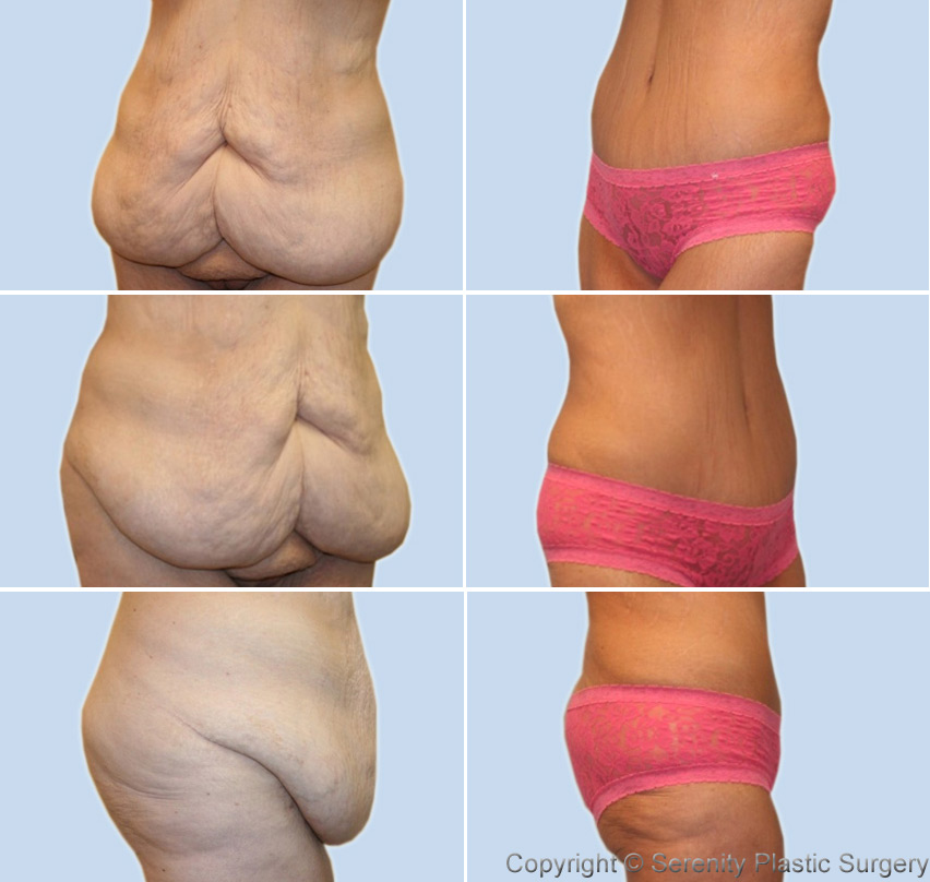 Tummy tuck. Causes, symptoms, treatment Tummy tuck
