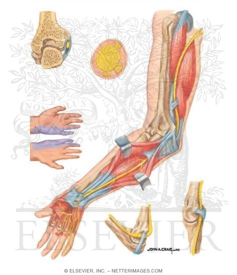 ulnar nerve - photo #47