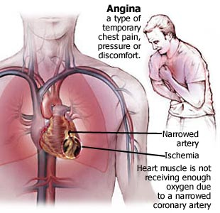 Unstable Angina. Causes, symptoms, treatment Unstable Angina
