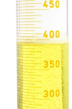 Urine output - decreased. Causes, symptoms, treatment ...