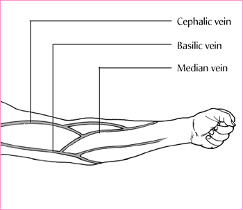 similiar small veins venipuncture keywords, Cephalic Vein