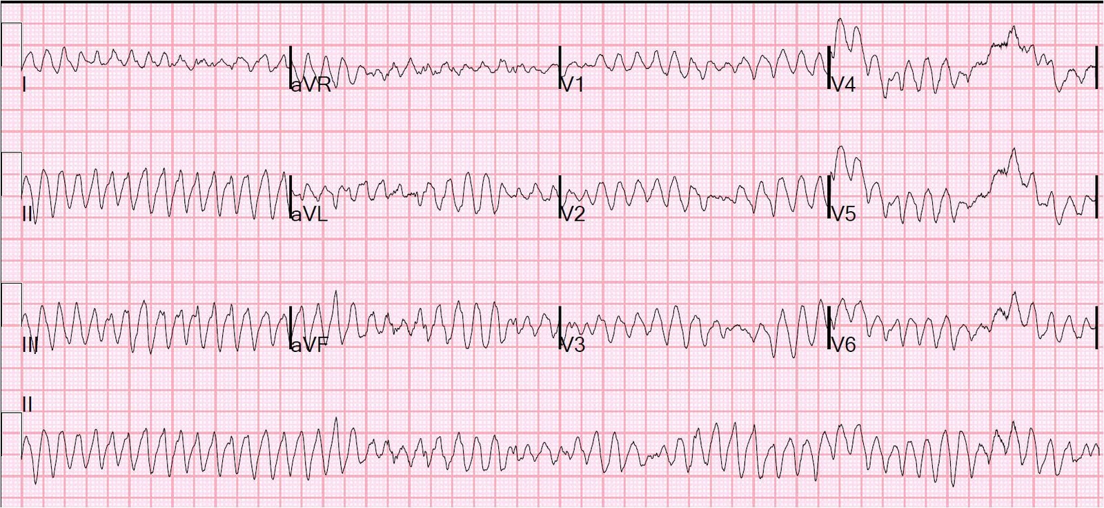Interpret EKGs Strips Like a Boss! ekg interpretation for