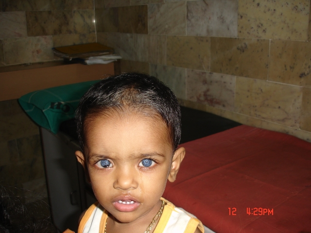 waardenburg syndrome What is waardenburg syndrome waardenburg syndrome is a rare disease caused by genetic defects which occurs in 1 in 50000 populations it presents with defects in eye, skin, and hair right.