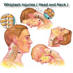 How Long Does Neck Pain Last After Car Accident