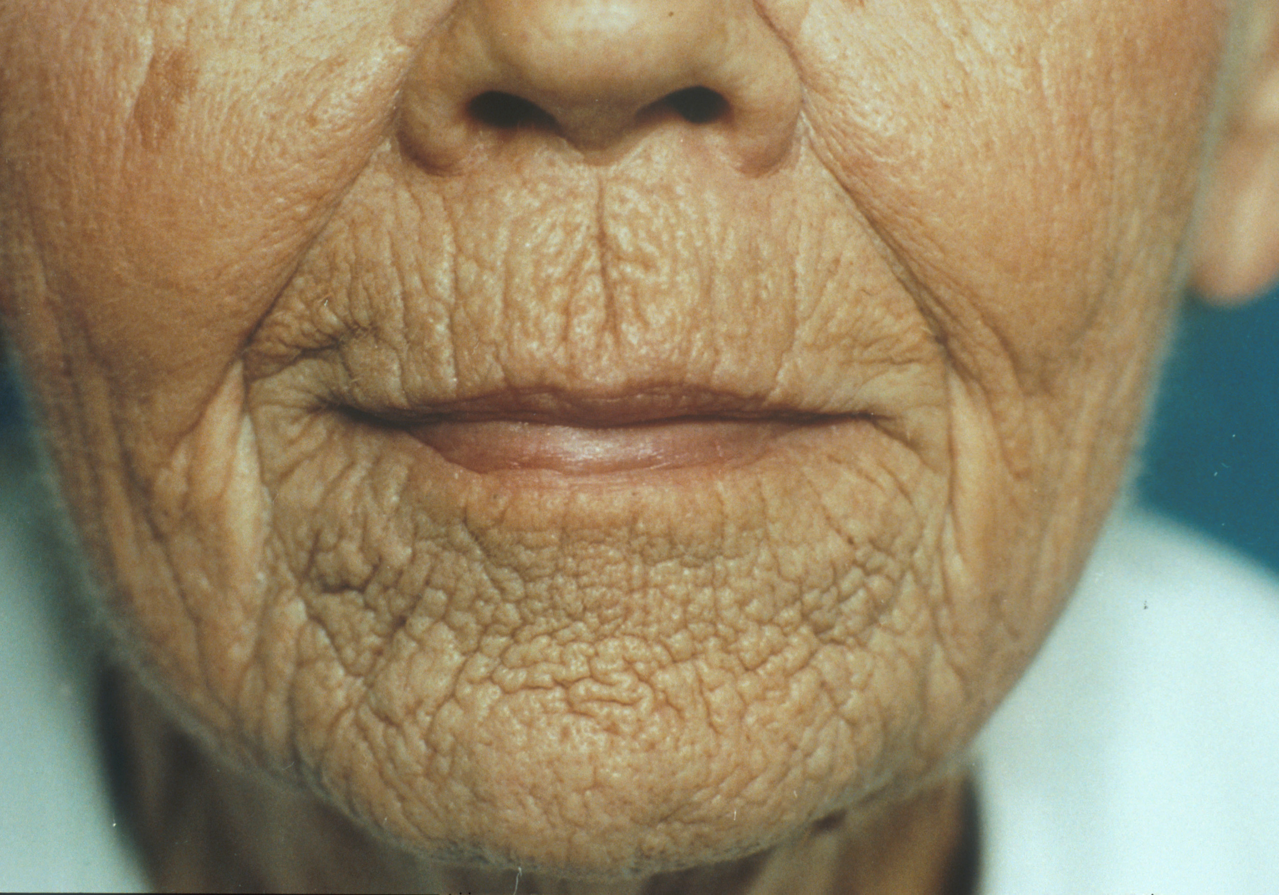 Wrinkles - Symptoms and causes - Mayo Clinic |Wrinkly Skin