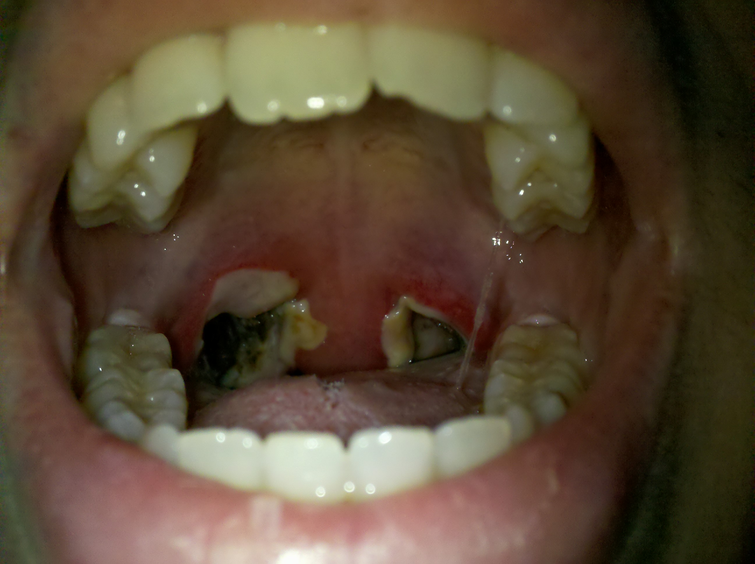 Complications common for adults after tonsillectomy