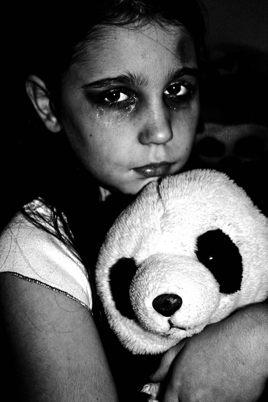 Abuse, Child. Causes, Symptoms, Treatment Abuse, Child