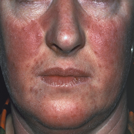 Acne rosacea. Causes, symptoms, treatment Acne rosacea