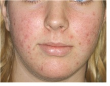 Acne vulgaris. Causes, symptoms, treatment Acne vulgaris