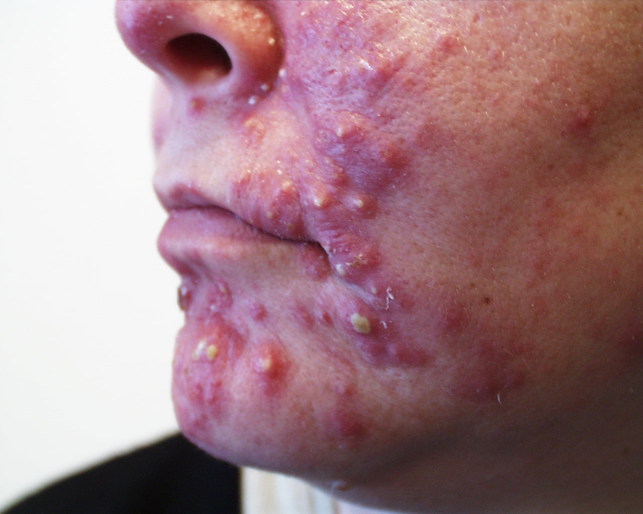 acne in adults