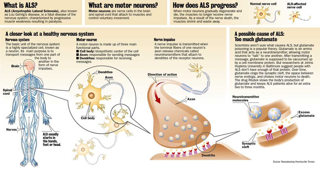 Als causes symptoms treatment als What is lower motor neuron disease