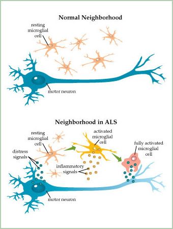 Als causes symptoms treatment als for What is motor neuron