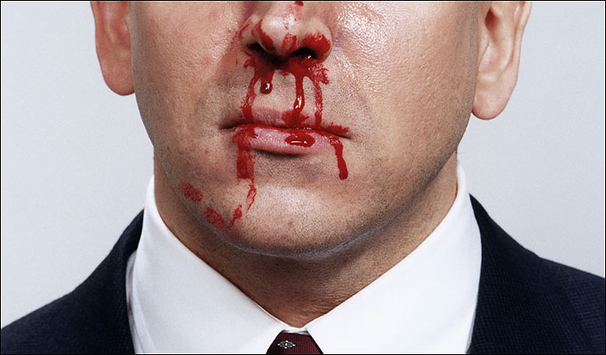 Bloody Nose Causes Symptoms Treatment Bloody Nose