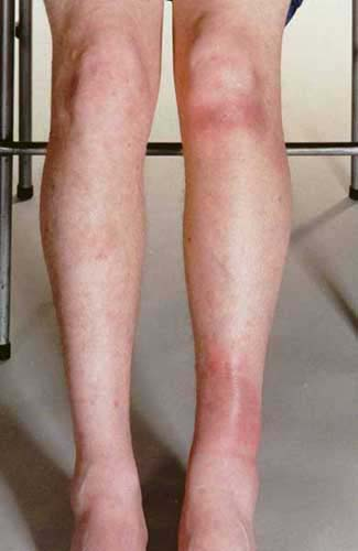 how to get rid of erythema nodosum