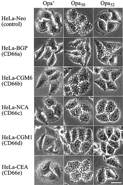hela cell  causes  symptoms  treatment hela cell