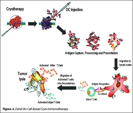 Immunotherapy Causes Symptoms Treatment Immunotherapy