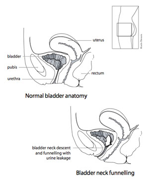 Pelvic Floor Disorders likewise 1584 also Frog dissection likewise Bladder Meridian in addition Human Body Immune System Functions. on urinary bladder