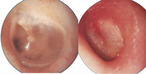 Otitis media in adults treatment sorry, not
